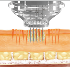 EPN Microneedling and Electroporation Mode Laser Skin Clinic