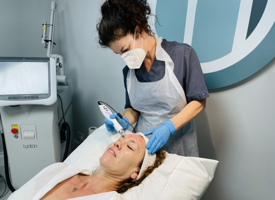 EPN MICRONEEDLING AND ELECTROPORATION