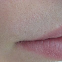 LIP after 7 treatments MG_1474